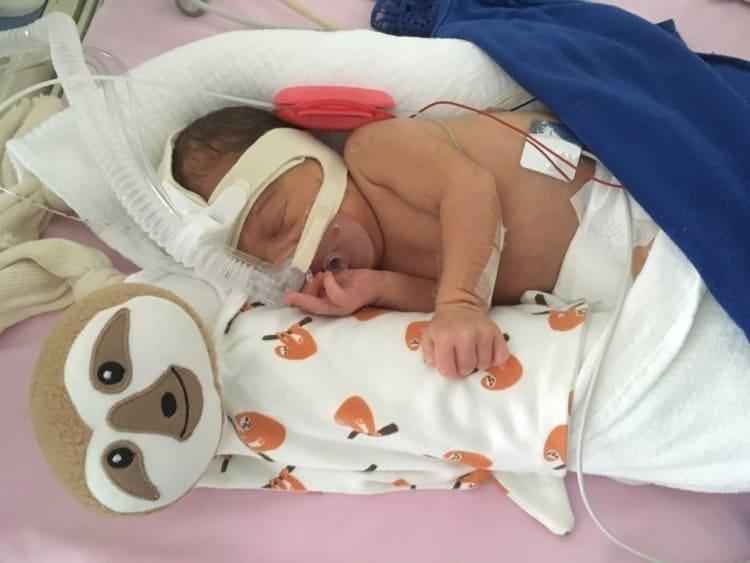 bebe prematuro com naninha timirim